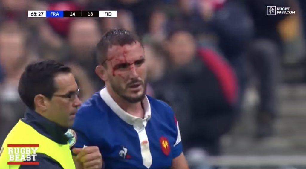 FOOTAGE: New video reveals how BRUTAL the hits were in France vs Fiji match