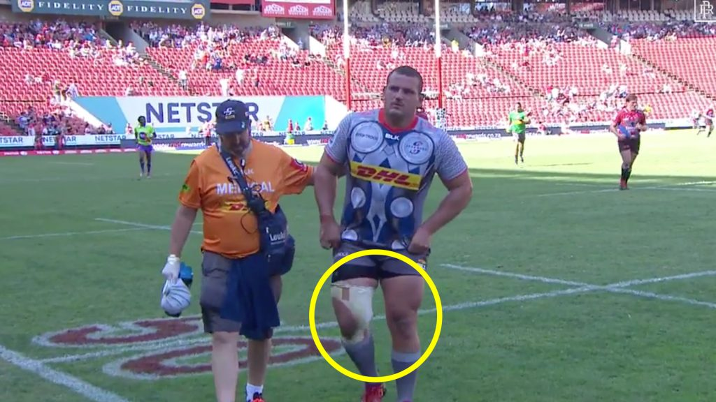 When a rugby player gets side-stepped so badly that they get injured