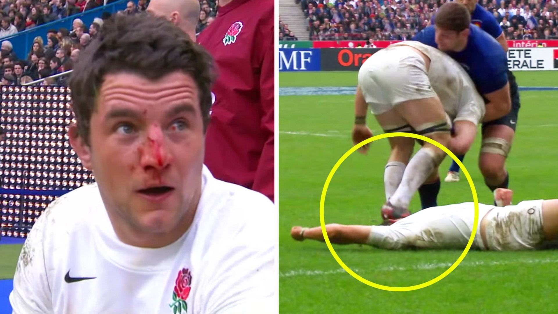 New video reveals horrific face stamp that almost blinded England star