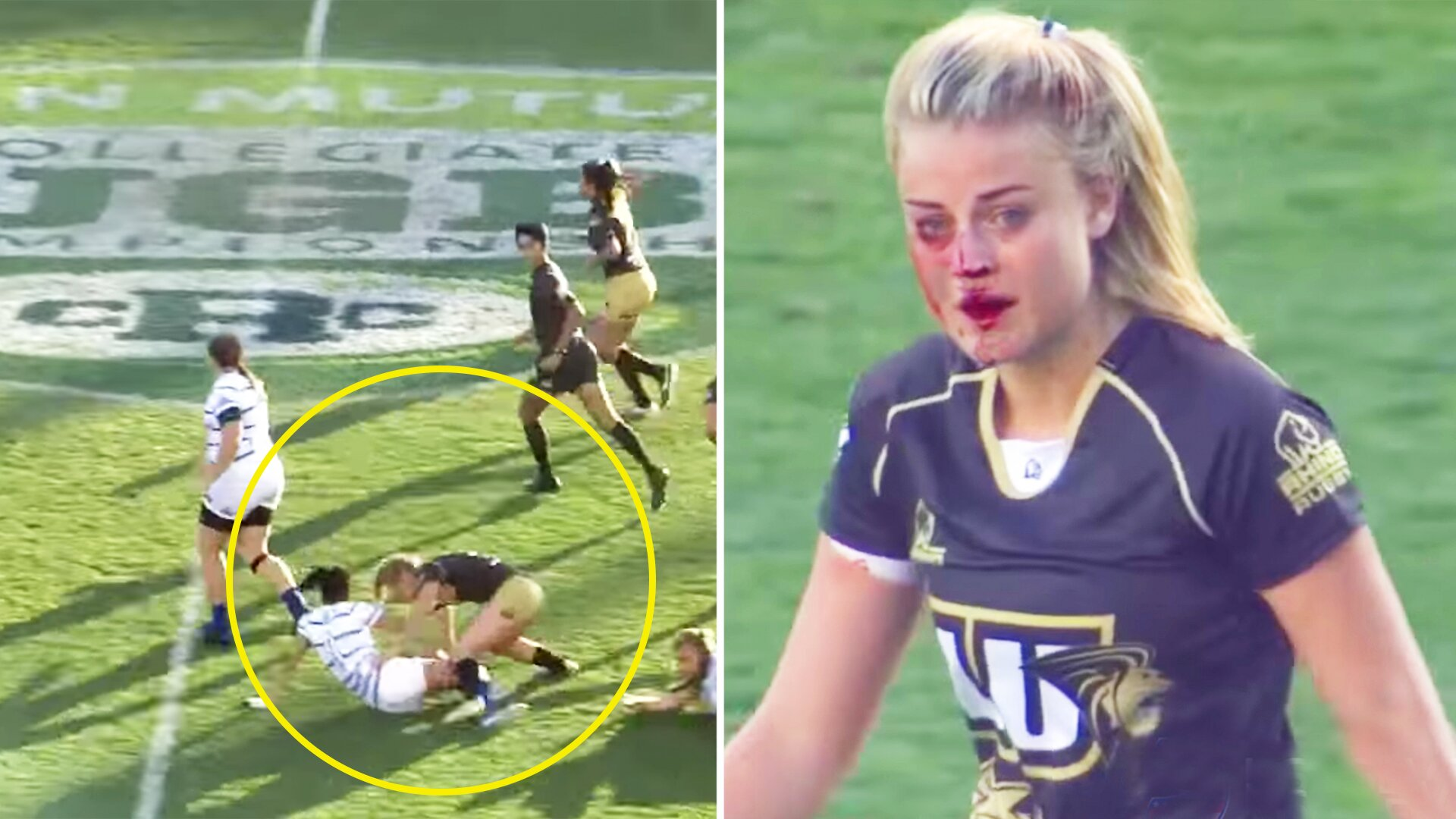 Rugby player breaks nose - then goes on frenzied tackling rampage
