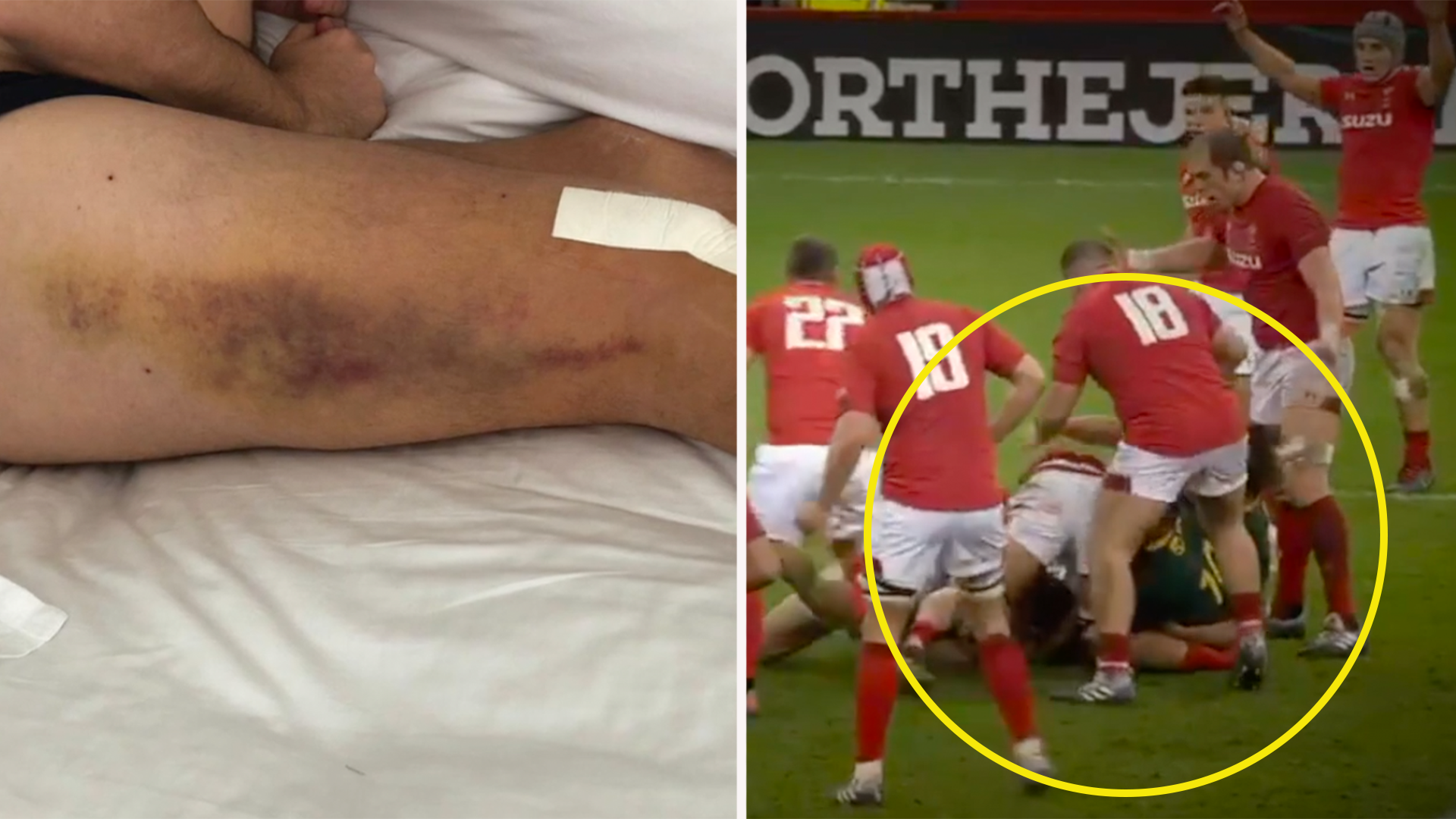 New Ellis Jenkins interview shows horrific toll that 'crocodile roll' took on his career